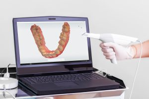 Digital dental impressions