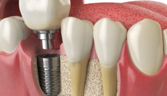 Dental Implants Oshkosh