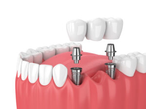 implant bridge to replace missing teeth