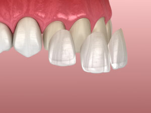 Dental veneers covering front of teeth