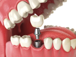 Parts of a dental implant in the mouth