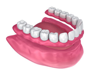 Removable complete denture