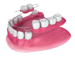 Partial denture to replace multiple missing teeth
