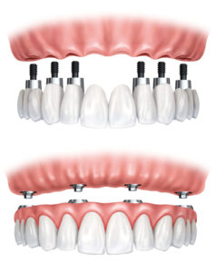 reconstruction of missing teeth using multiple dental implants